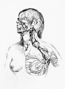 MLD lymfe borstbehandeling